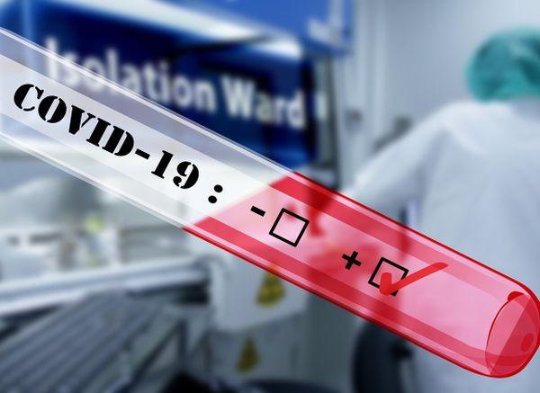 1595 са заразените с COVID-19 вчера, 59 от тях са медици