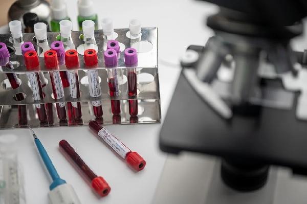 И в Пазарджик набират кръв за осигуряване на реконвалесцентна плазма