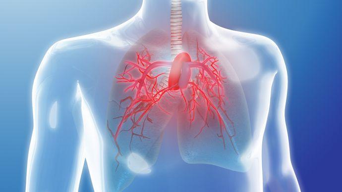 """""""Дари дъх!"""" за Световния ден на пулмоналната хипертония"""