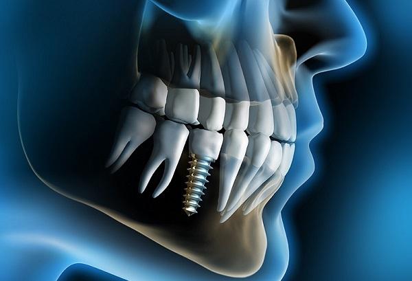 "В УМБАЛ ""Св. Анна"" започва цялостно имплантологично лечение"