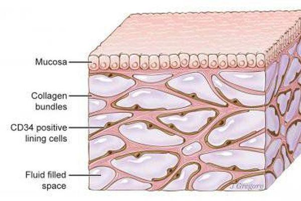 Откриха как се разпространява ракът в човешкото тяло
