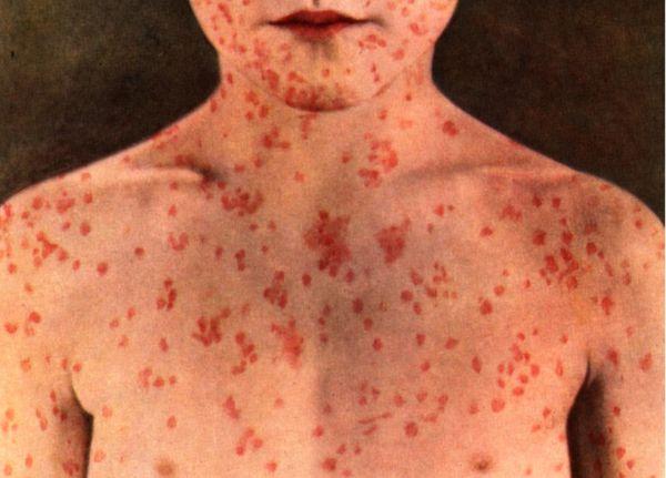 Бум на дребна шарка в Европа заради намалено ваксинално покритие