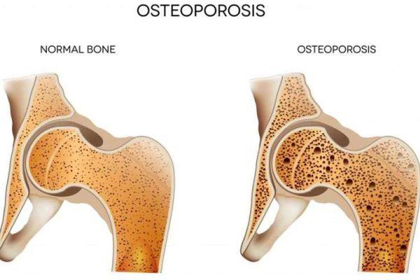 Над 400 000 са диагностицирани с остеопороза у нас, още толкова са в риск