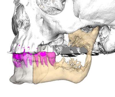 """Уникално за Югоизточна Европа трансплантиране на челюст извършиха в """"Пирогов"""""""