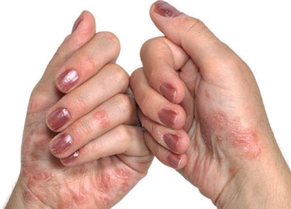 Около  140 000 са хората с псориазис у нас
