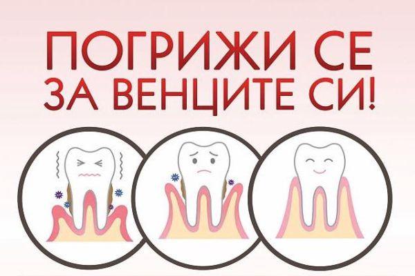 """Кампанията """"Погрижи се за венците си!"""" организират студенти от МУ-Варна"""