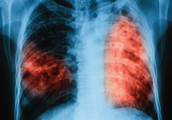 С 9% са намалели болните от туберкулоза в България през 2017 г.