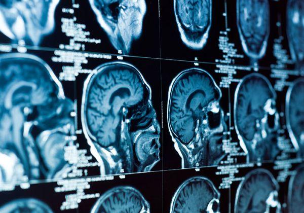 Редица нови изисквания в новия стандарт по образна диагностика