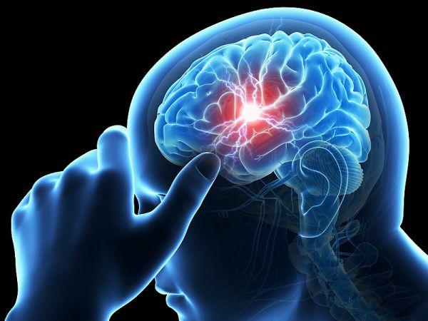 В 75% от случаите инсултът е причинен от неоткрито предсърдно мъждене